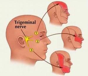 Những thách thức trong đau thần kinh
