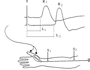 Ghi điện cơ trong lâm sàng thần kinh