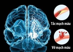 Dự phòng đột quỵ não