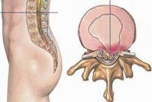 Khảo sát hội chứng chân không yên trên bệnh nhân bệnh lý rễ thắt lưng cùng