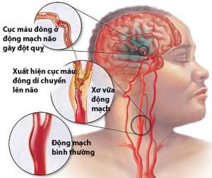 Nghiên cứu nồng độ acid uric huyết tương  ở bệnh nhân đột quị não điều trị tại Bệnh viện Đa khoa trung ương Thái Nguyên