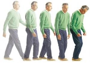 Chẩn đoán bệnh Parkinson năm 2016 có gì mới?