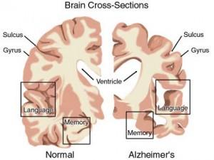 Cập nhật chẩn đoán và điều trị bệnh Alzheimer