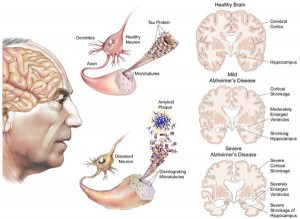 Một số vấn đề cần biết về bệnh Alzheimer