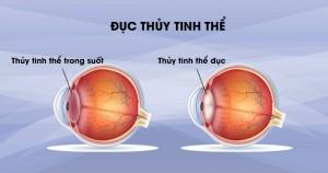 Đục thủy tinh thể có thực sự đáng sợ? – Cách để bảo vệ đôi mắt luôn sáng khỏe